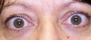 re-Operative Photograph showing upper eyelid retraction
